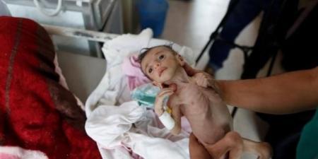 مقتل 10 الاف طفل.. الامم المتحدة تعلن بلوغ الصراع اليمني مستوى جديد