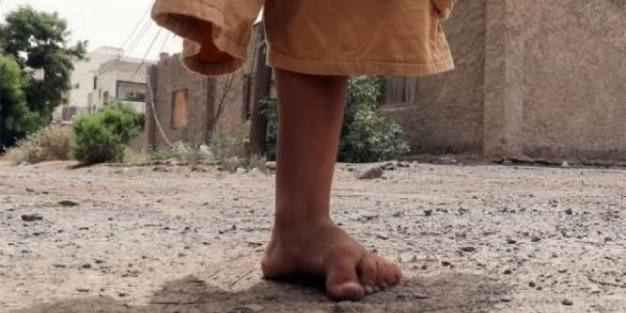جريمة أخرى للحوثيين بحق المدنيين في محافظة البيضاء