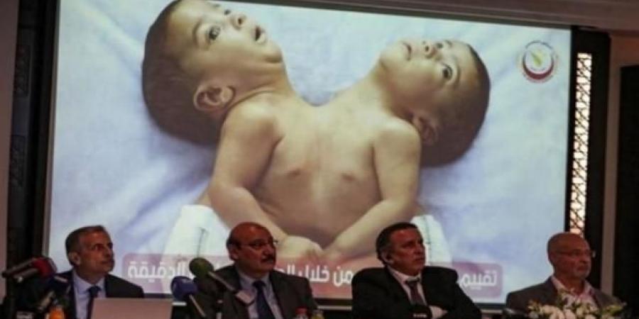 في عملية معقدة .. فصل توأم سيامي يمني ملتصقًا من البطن والصدر ويتشاركان الكبد وغشاء القلب