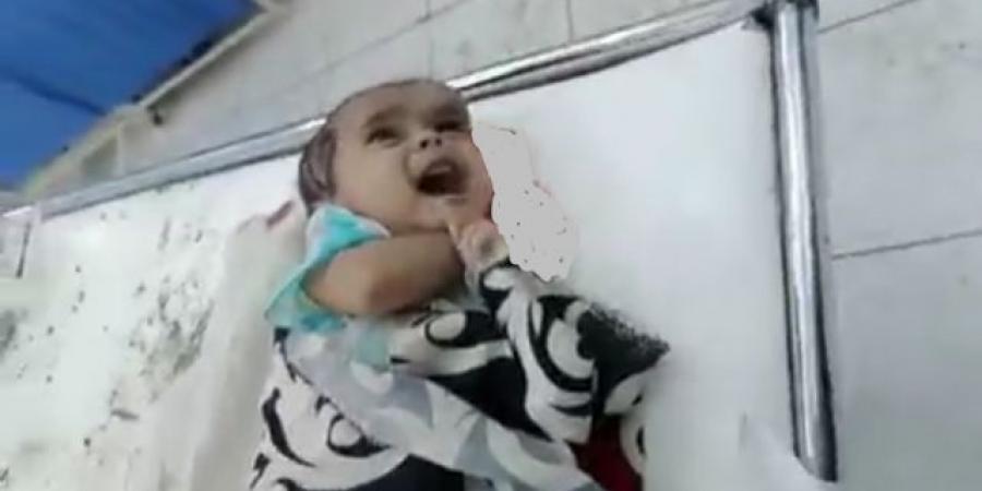 """هزت صورته المجتمع ... وفاة طفل مأرب الرضيع متأثرا باصابته بشظايا صواريخ الحوثي التي استهدفت منزل """"بن عزبز"""" في المدينة"""