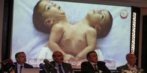 نجاح عملية نادرة استمرت 8 ساعة متواصلة لفصل توأم سيامي يمني